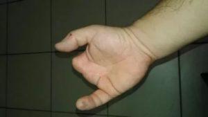 Отсутствие пальца на руке инвалидность